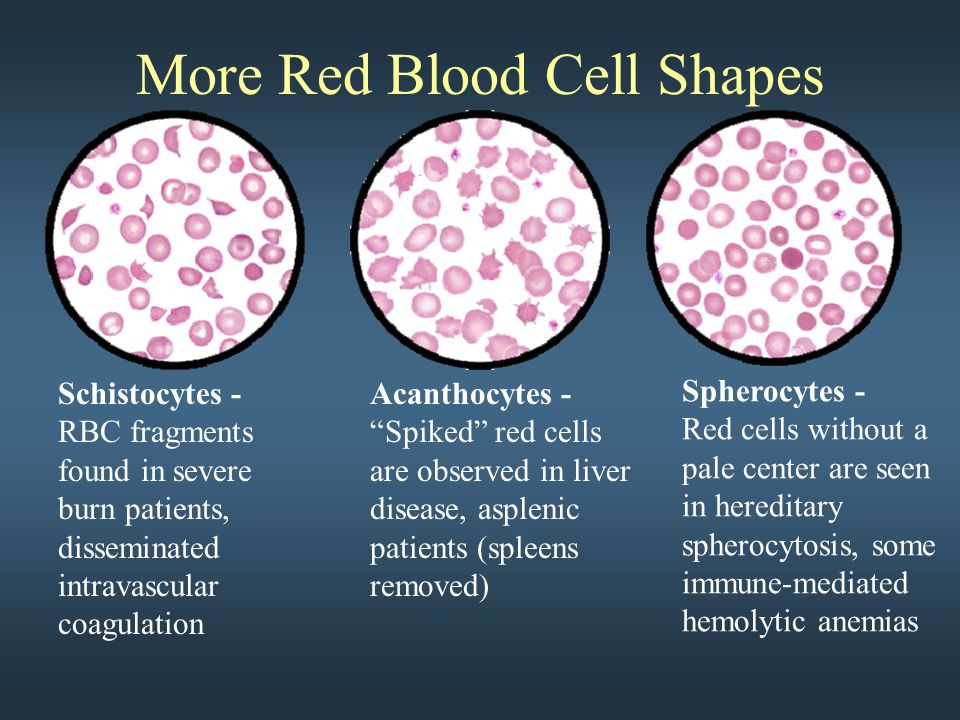 """More Red Blood Cell Shapes Schistocytes - RBC fragments found in severe burn patients, disseminated intravascular coagulation Acanthocytes - """"Spiked"""""""