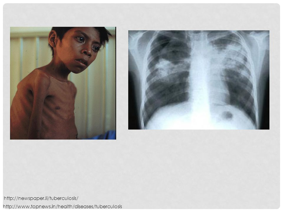 http://newspaper.li/tuberculosis/ http://www.topnews.in/health/diseases/tuberculosis