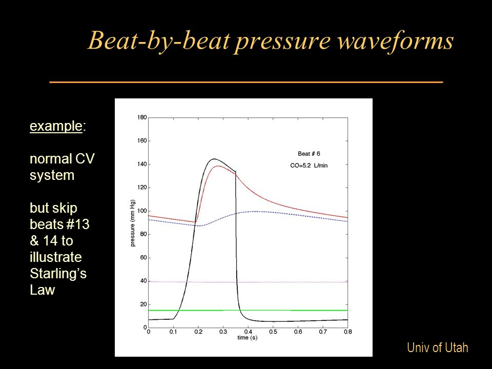 Univ of Utah Beat-by-beat pressure waveforms example: normal CV system but skip beats #13 & 14 to illustrate Starling's Law