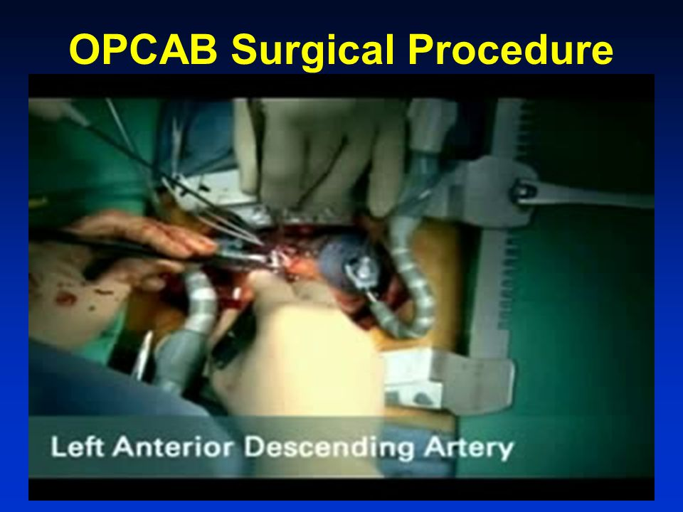 OPCAB Surgical Procedure