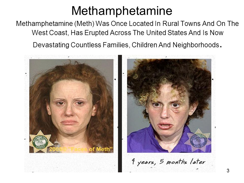 24 or more < 3 3 - 9 Incomplete data 10 - 23 Primary methamphetamine/amphetamine admission rates by State: TEDS 1992-2002 (per 100,000 population aged 12 and over) 1993 KEY YEAR: 1992 Source: Substance Abuse and Mental Health Services Administration