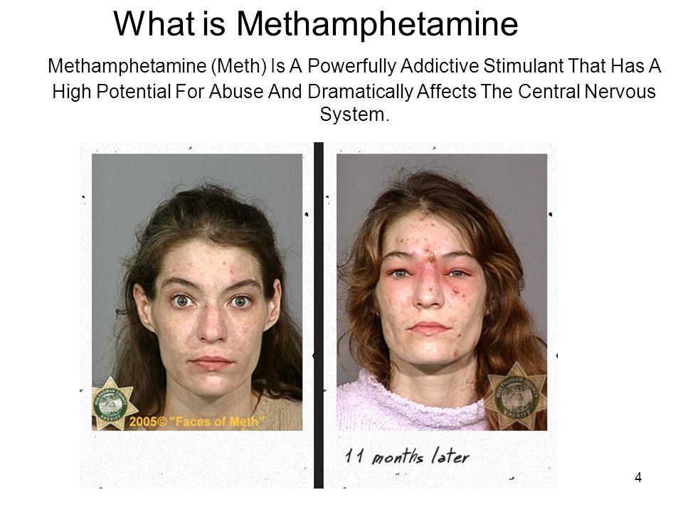 4 What is Methamphetamine Methamphetamine (Meth) Is A Powerfully Addictive Stimulant That Has A High Potential For Abuse And Dramatically Affects The