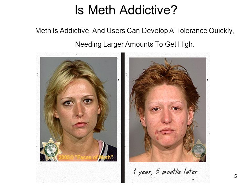 5 Is Meth Addictive? Meth Is Addictive, And Users Can Develop A Tolerance Quickly, Needing Larger Amounts To Get High.