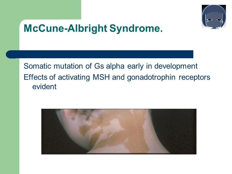 McCune-Albright Syndrome.
