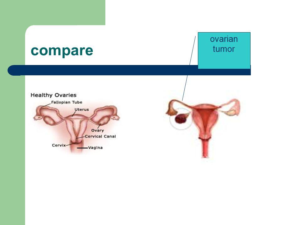 compare ovarian tumor