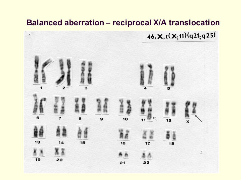 Balanced aberration – reciprocal X/A translocation