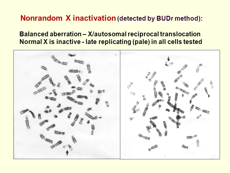 Nonrandom X inactivation (detected by BUDr method): Balanced aberration – X/autosomal reciprocal translocation Normal X is inactive - late replicating
