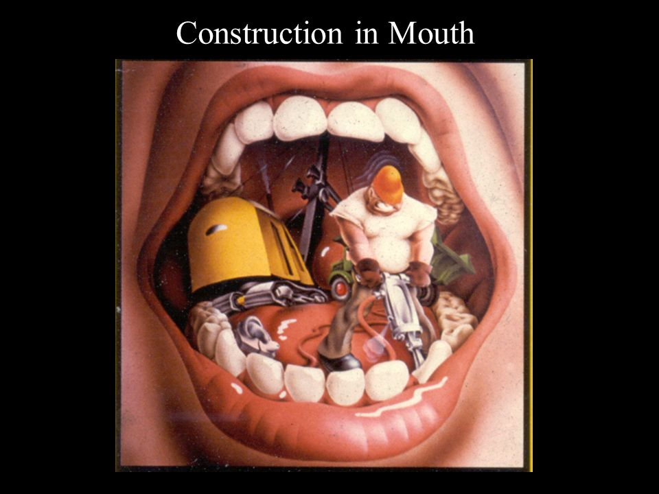 Construction in Mouth