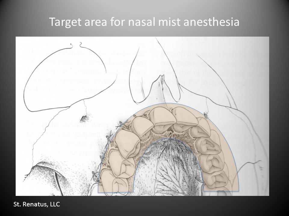 Target area for nasal mist anesthesia St. Renatus, LLC
