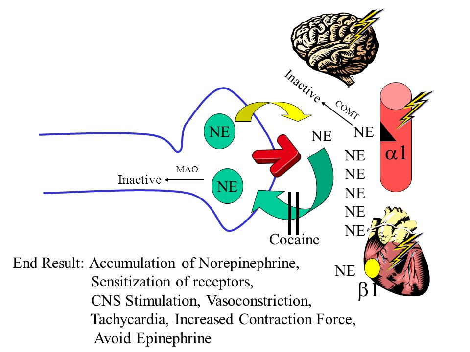 NE 11 11 Cocaine End Result: Accumulation of Norepinephrine, Sensitization of receptors, CNS Stimulation, Vasoconstriction, Tachycardia, Increased
