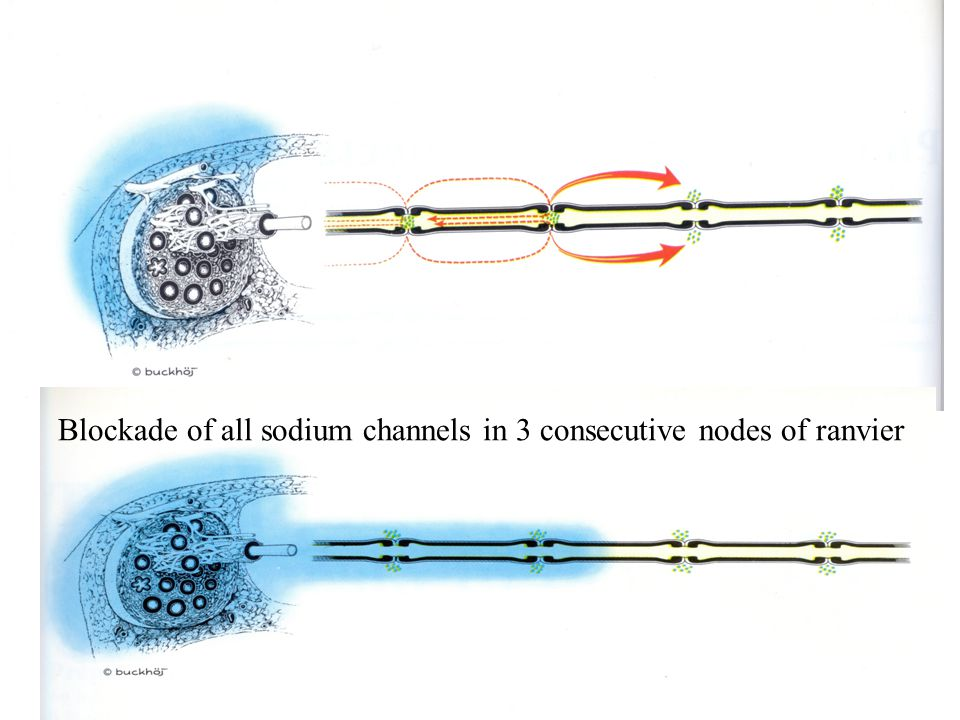 Blockade of all sodium channels in 3 consecutive nodes of ranvier