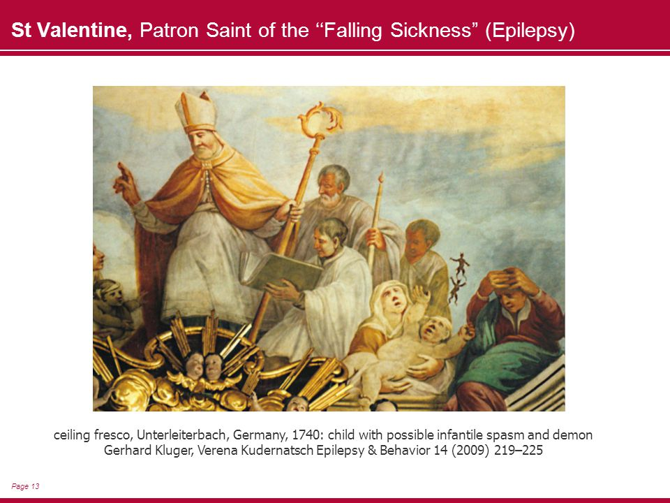 Page 13 St Valentine, Patron Saint of the ''Falling Sickness (Epilepsy) ceiling fresco, Unterleiterbach, Germany, 1740: child with possible infantile spasm and demon Gerhard Kluger, Verena Kudernatsch Epilepsy & Behavior 14 (2009) 219–225
