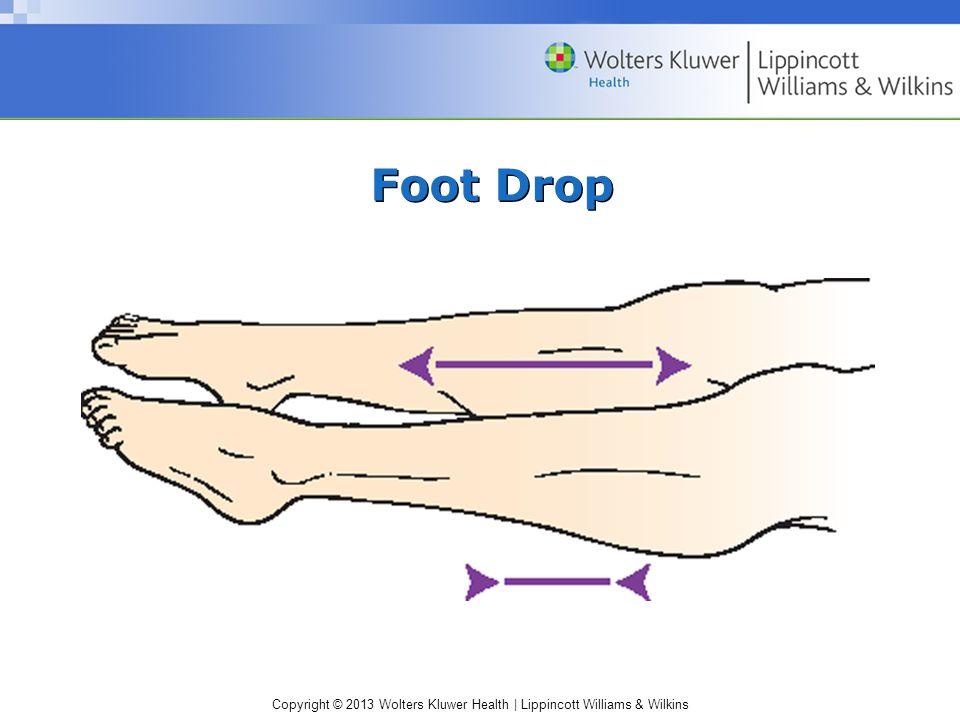 Copyright © 2013 Wolters Kluwer Health | Lippincott Williams & Wilkins Foot Drop