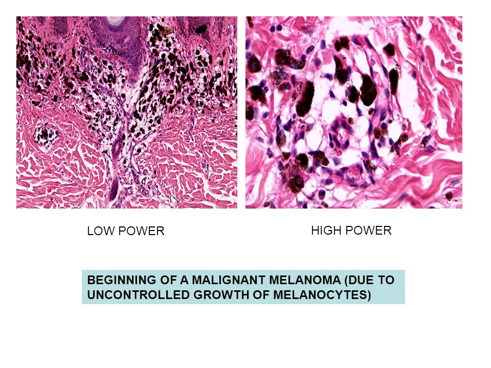 BEGINNING OF A MALIGNANT MELANOMA (DUE TO UNCONTROLLED GROWTH OF MELANOCYTES) LOW POWER HIGH POWER