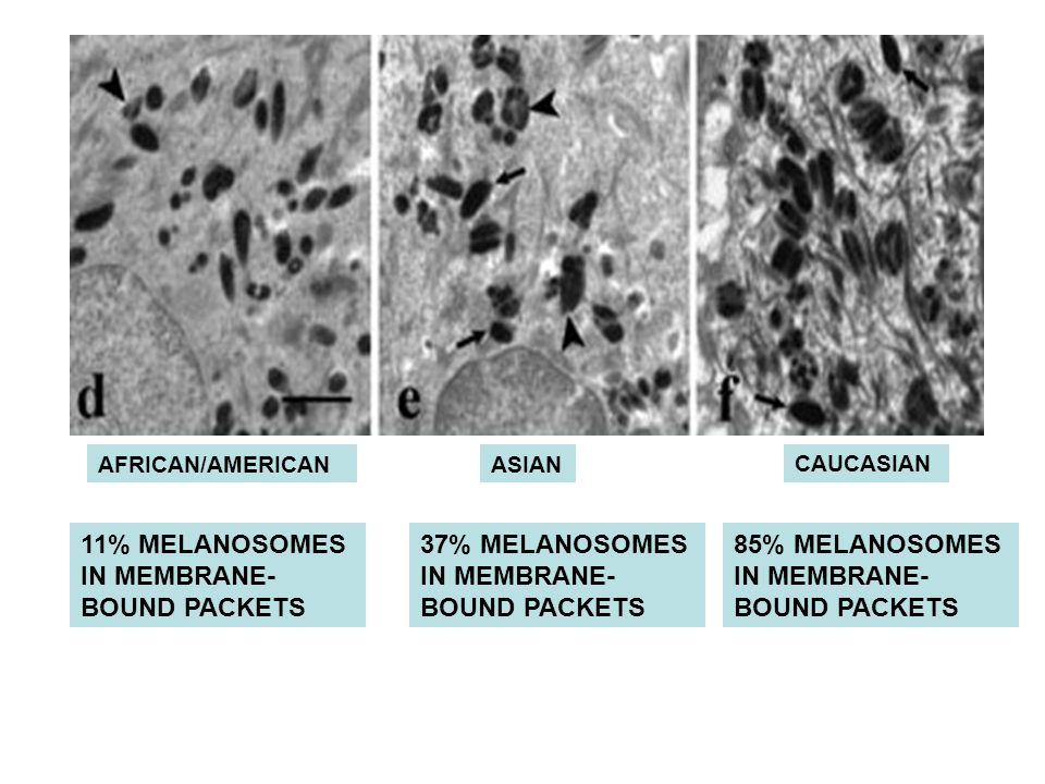 AFRICAN/AMERICANASIAN CAUCASIAN 11% MELANOSOMES IN MEMBRANE- BOUND PACKETS 37% MELANOSOMES IN MEMBRANE- BOUND PACKETS 85% MELANOSOMES IN MEMBRANE- BOUND PACKETS