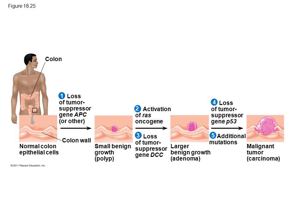 Figure 18.25 Colon Normal colon epithelial cells Loss of tumor- suppressor gene APC (or other) 1 2 345 Colon wall Small benign growth (polyp) Activati