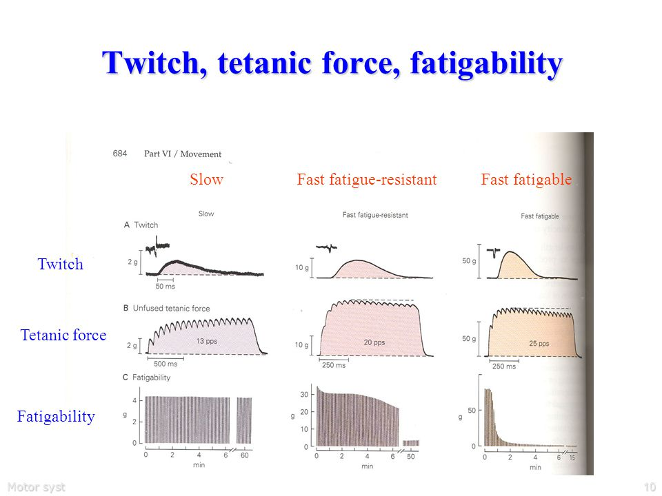 Motor systems10 Twitch, tetanic force, fatigability SlowFast fatigue-resistantFast fatigable Twitch Tetanic force Fatigability