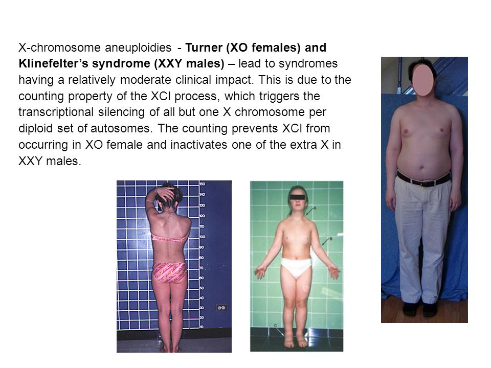 X-chromosome aneuploidies - Turner (XO females) and Klinefelter's syndrome (XXY males) – lead to syndromes having a relatively moderate clinical impact.