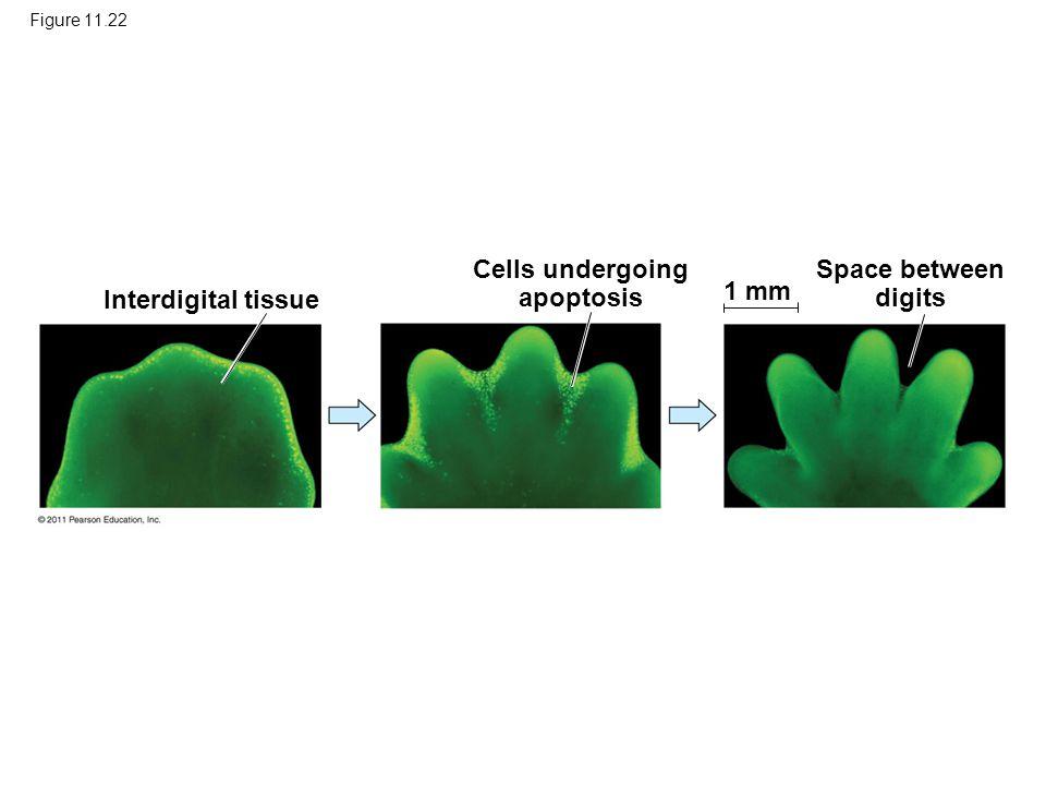 Figure 11.22 Interdigital tissue Cells undergoing apoptosis Space between digits 1 mm