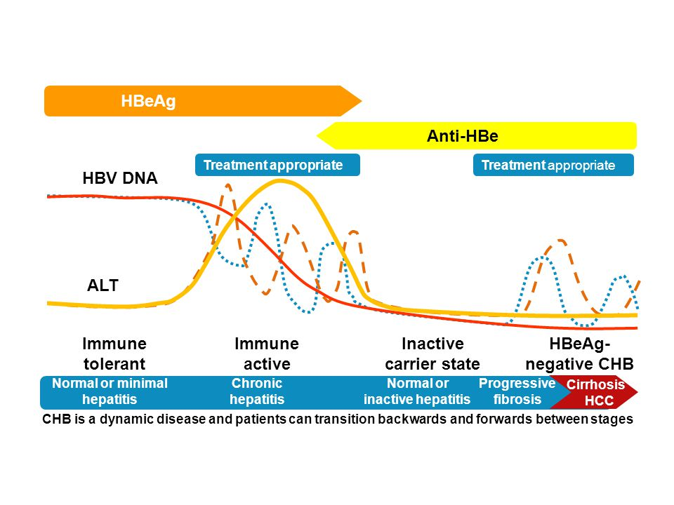 Treatment appropriate Normal or minimal hepatitis Chronic hepatitis Normal or inactive hepatitis Progressive fibrosis Cirrhosis HCC HBeAg Anti-HBe HBV DNA ALT Immune tolerant Immune active Inactive carrier state HBeAg- negative CHB CHB is a dynamic disease and patients can transition backwards and forwards between stages