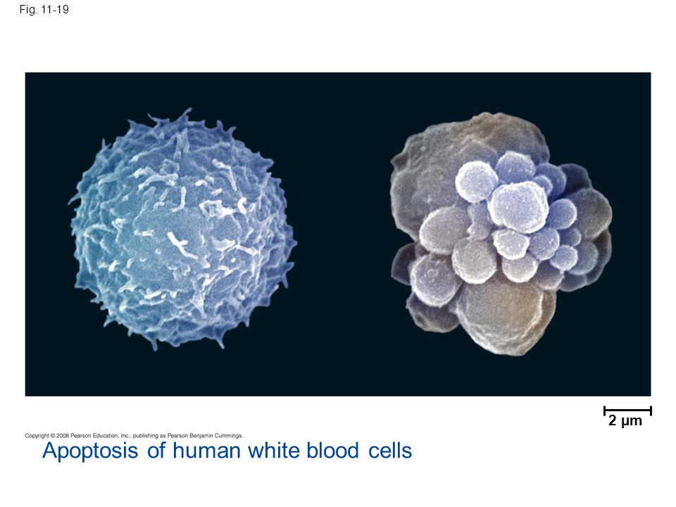 Fig. 11-19 2 µm Apoptosis of human white blood cells