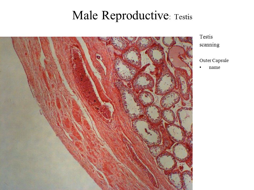 Male Reproductive : Testis Testis scanning Outer Capsule name