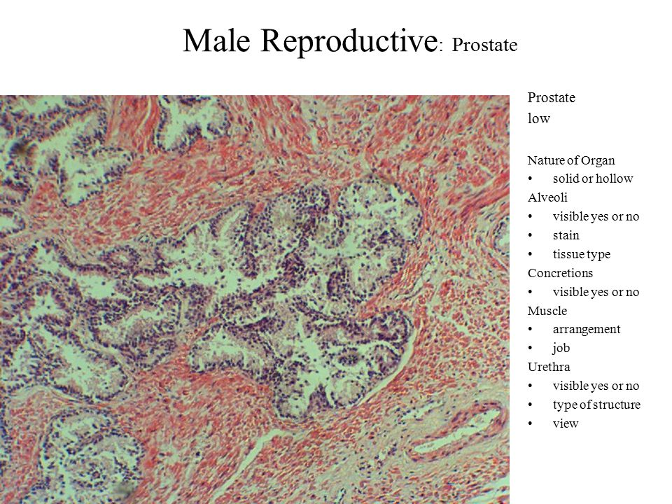 Male Reproductive : Prostate Prostate low Nature of Organ solid or hollow Alveoli visible yes or no stain tissue type Concretions visible yes or no Muscle arrangement job Urethra visible yes or no type of structure view