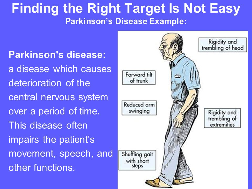 Finding the Right Target Is Not Easy Parkinson's Disease Example: Parkinson s disease: a disease which causes deterioration of the central nervous system over a period of time.