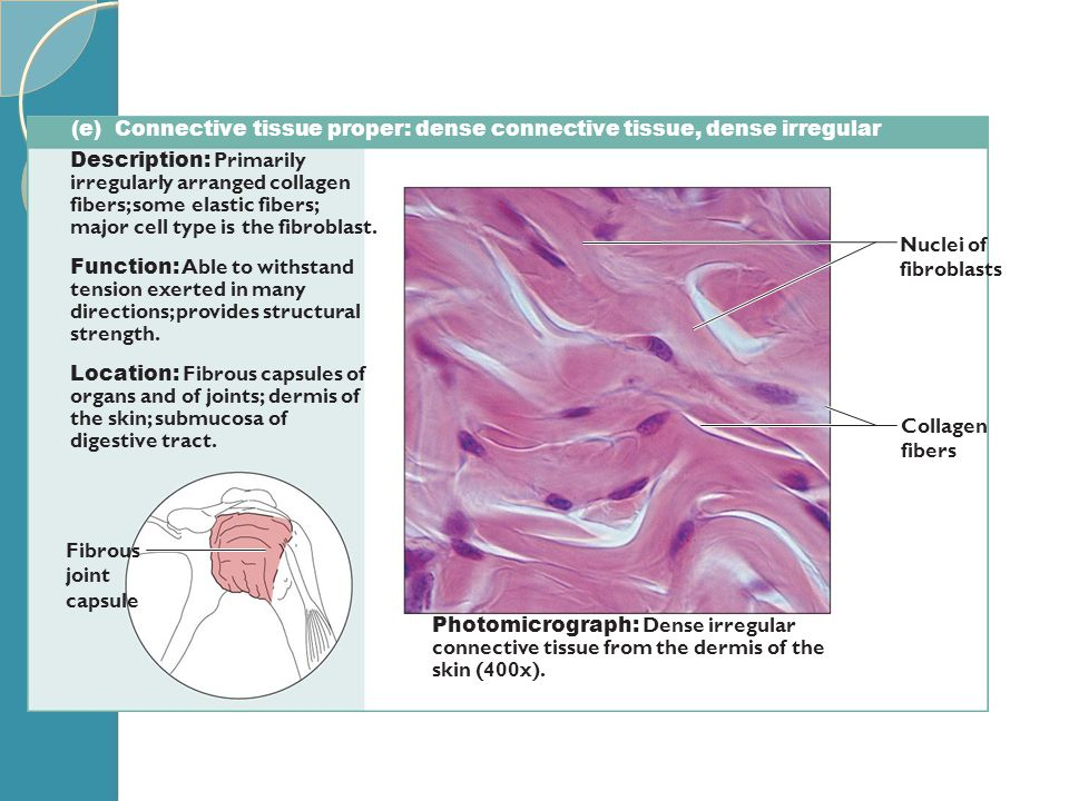 (e) Connective tissue proper: dense connective tissue, dense irregular Description: Primarily irregularly arranged collagen fibers; some elastic fiber