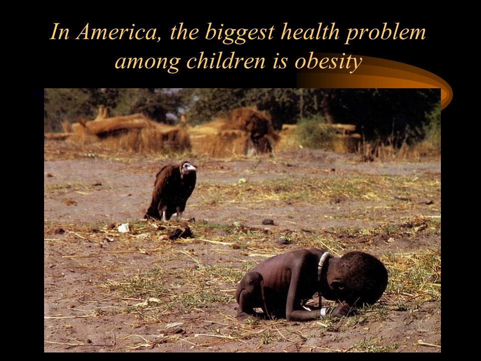 In America, the biggest health problem among children is obesity