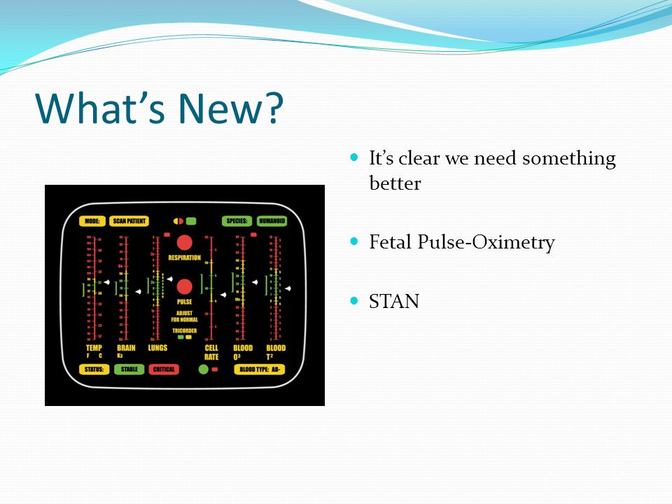 What's New It's clear we need something better Fetal Pulse-Oximetry STAN