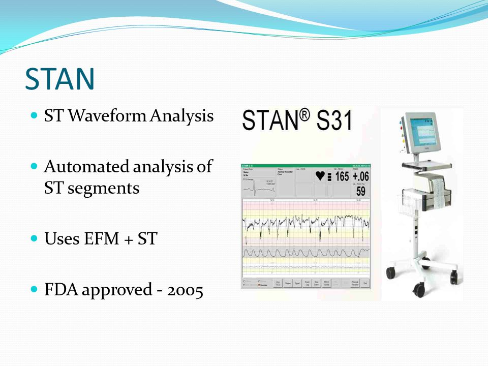 STAN ST Waveform Analysis Automated analysis of ST segments Uses EFM + ST FDA approved - 2005