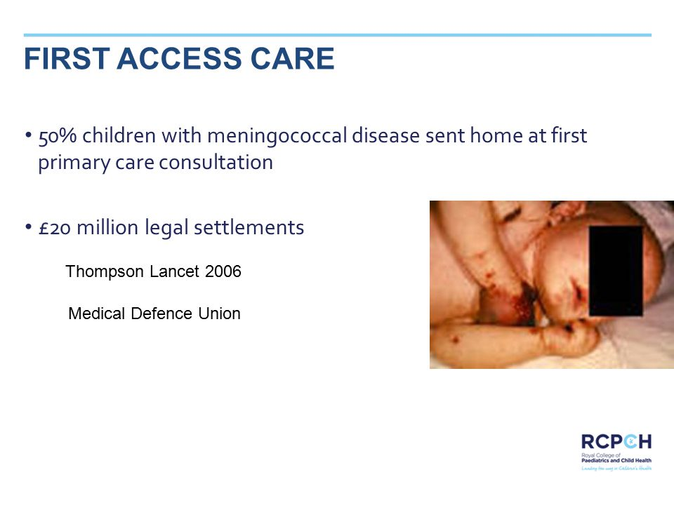 SAMPLE TITLE FIRST ACCESS CARE 50% children with meningococcal disease sent home at first primary care consultation £20 million legal settlements Thompson Lancet 2006 Medical Defence Union