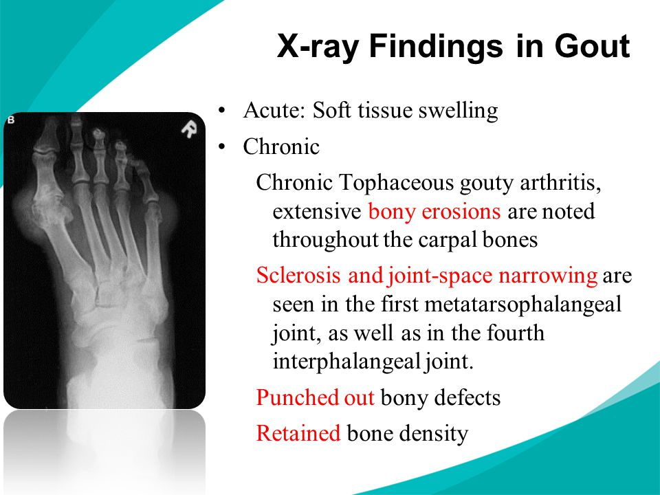 X-ray Findings in Gout Acute: Soft tissue swelling Chronic Chronic Tophaceous gouty arthritis, extensive bony erosions are noted throughout the carpal