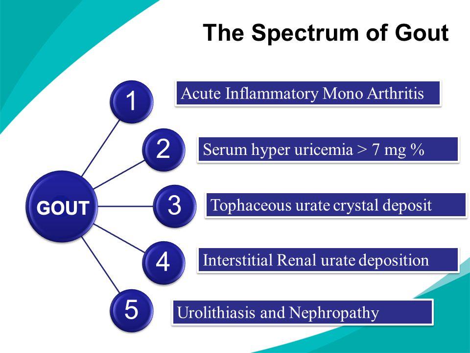 Septic ArthritisCPPD – Pseudo GoutAcute Rheumatic FeverPalindromic RheumatismPsoriatic Arthritis Differential Diagnosis