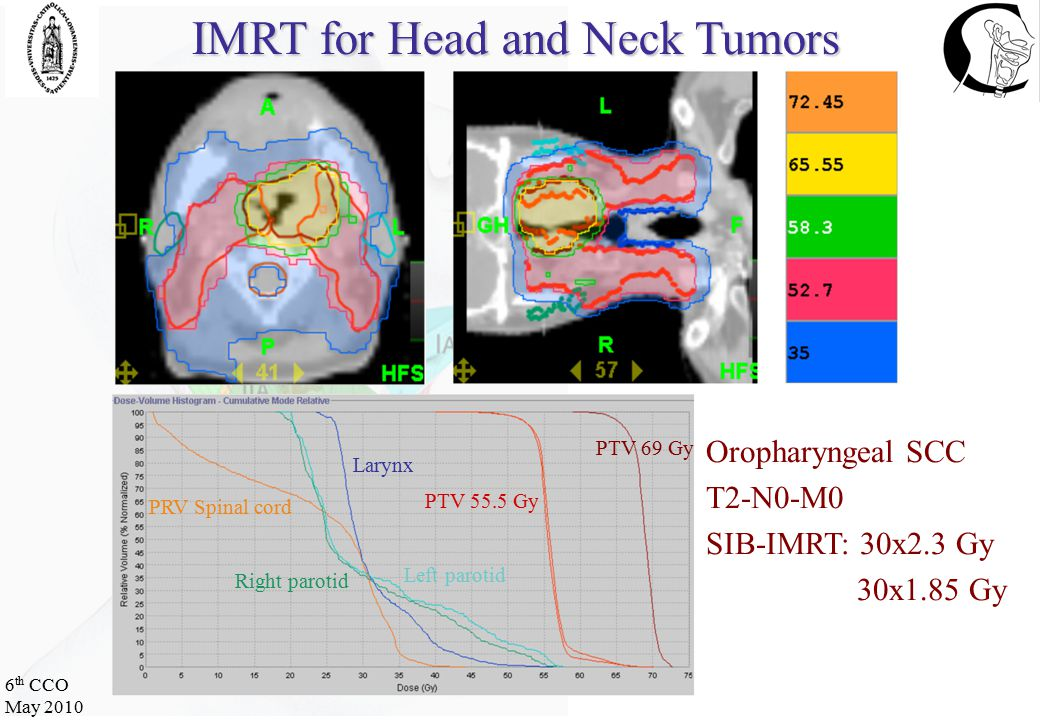 6 th CCO May 2010 ≥ grade 3 mucositis: IMRT vs 3D-CRT Acute toxicity with IMRT Vergeer, 2009