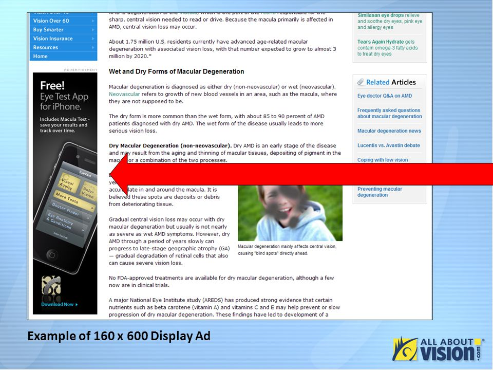 Example of 160 x 600 Display Ad