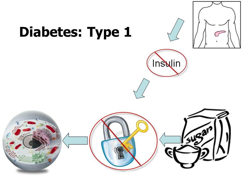 Diabetes: Type 1
