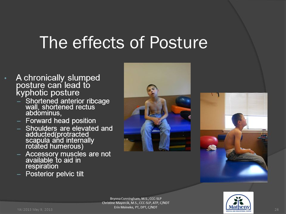 YAI 2013 May 9, 201326 The effects of Posture A chronically slumped posture can lead to kyphotic posture – Shortened anterior ribcage wall, shortened rectus abdominus, – Forward head position – Shoulders are elevated and adducted(protracted scapula and internally rotated humerous) – Accessory muscles are not available to aid in respiration – Posterior pelvic tilt