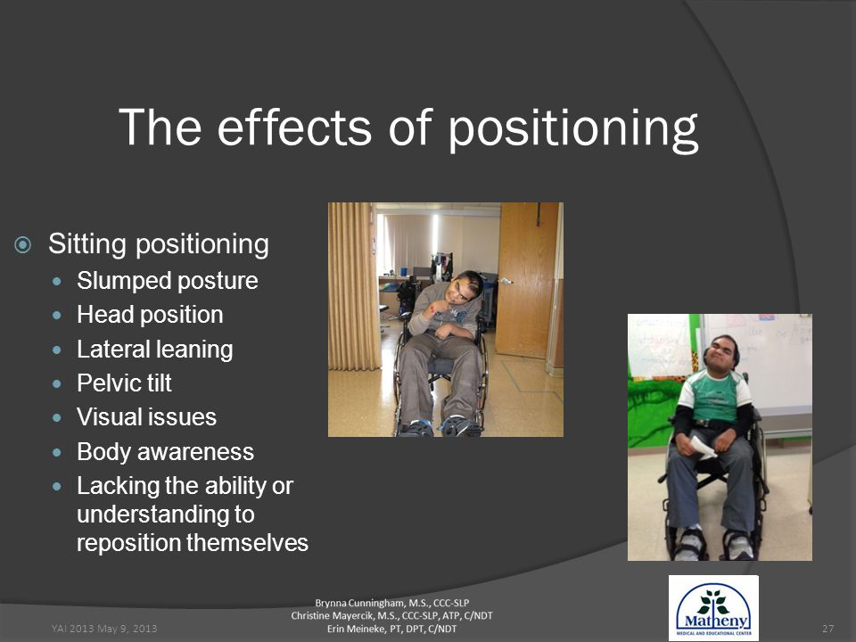 YAI 2013 May 9, 201327 The effects of positioning  Sitting positioning Slumped posture Head position Lateral leaning Pelvic tilt Visual issues Body awareness Lacking the ability or understanding to reposition themselves
