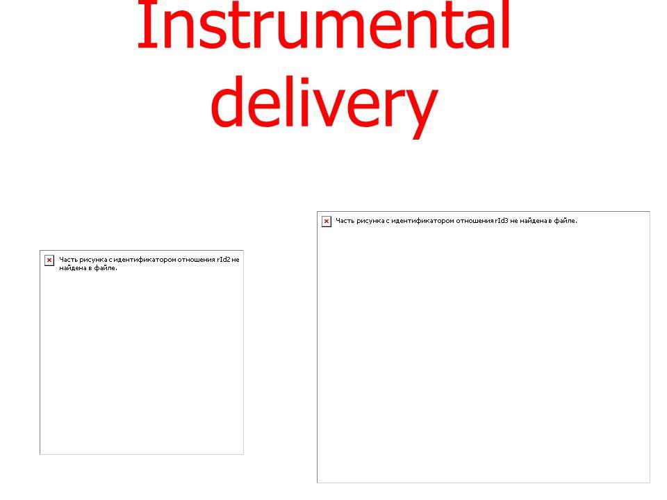 Instrumental delivery
