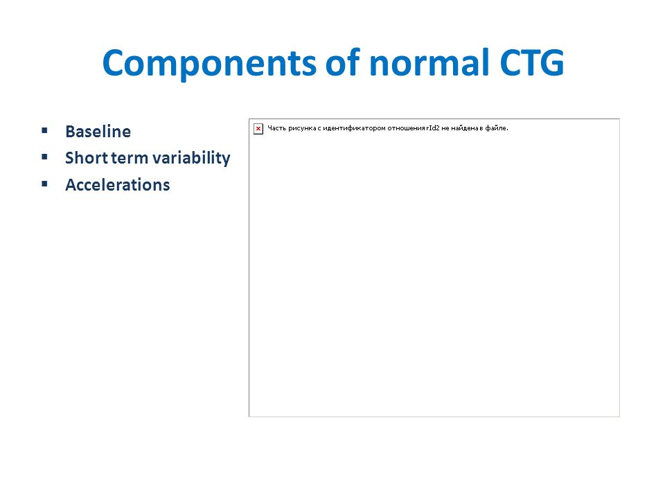 Components of normal CTG  Baseline  Short term variability  Accelerations