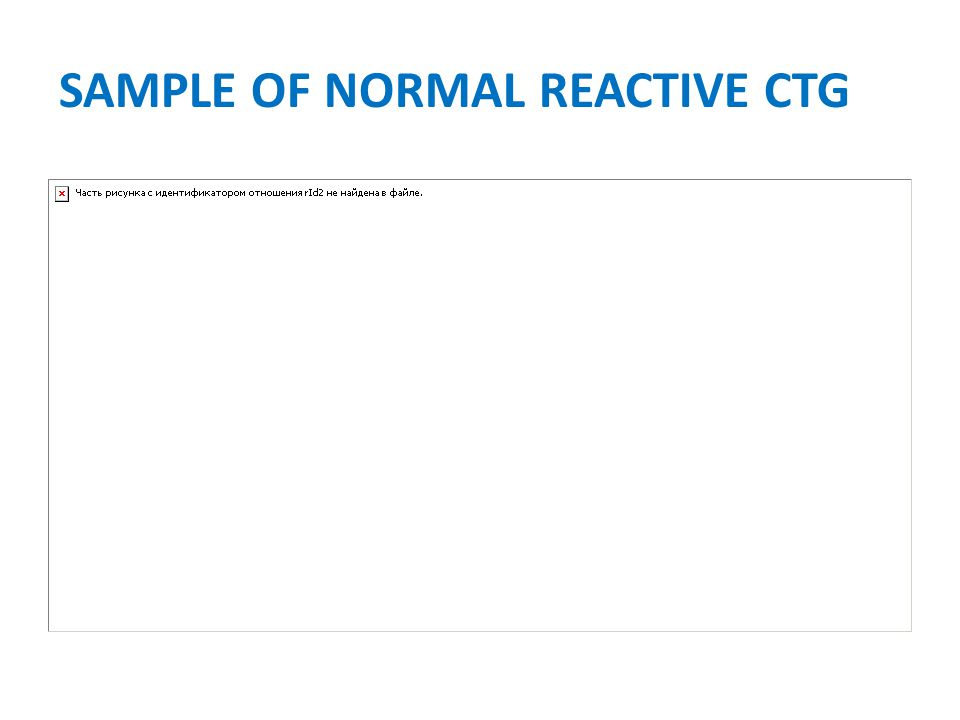 SAMPLE OF NORMAL REACTIVE CTG
