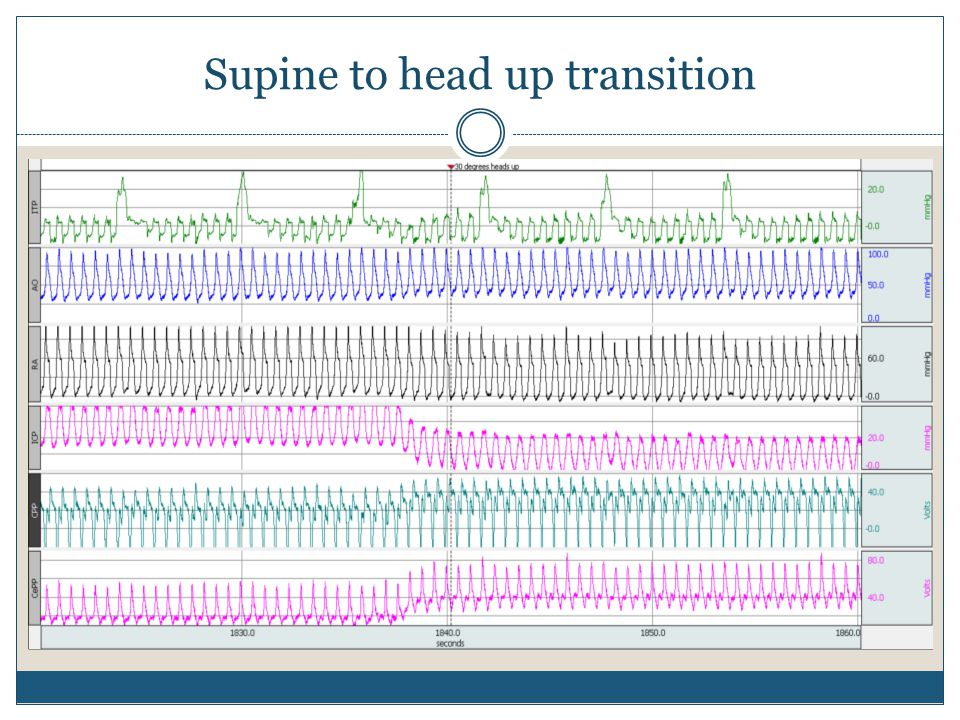 Supine to head up transition