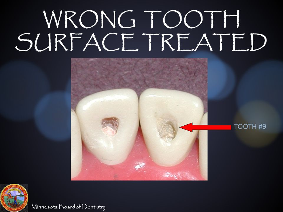 Minnesota Board of Dentistry WRONG TOOTH SURFACE TREATED TOOTH #9