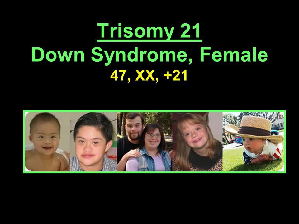 Trisomy 21 Down Syndrome, Female 47, XX, +21