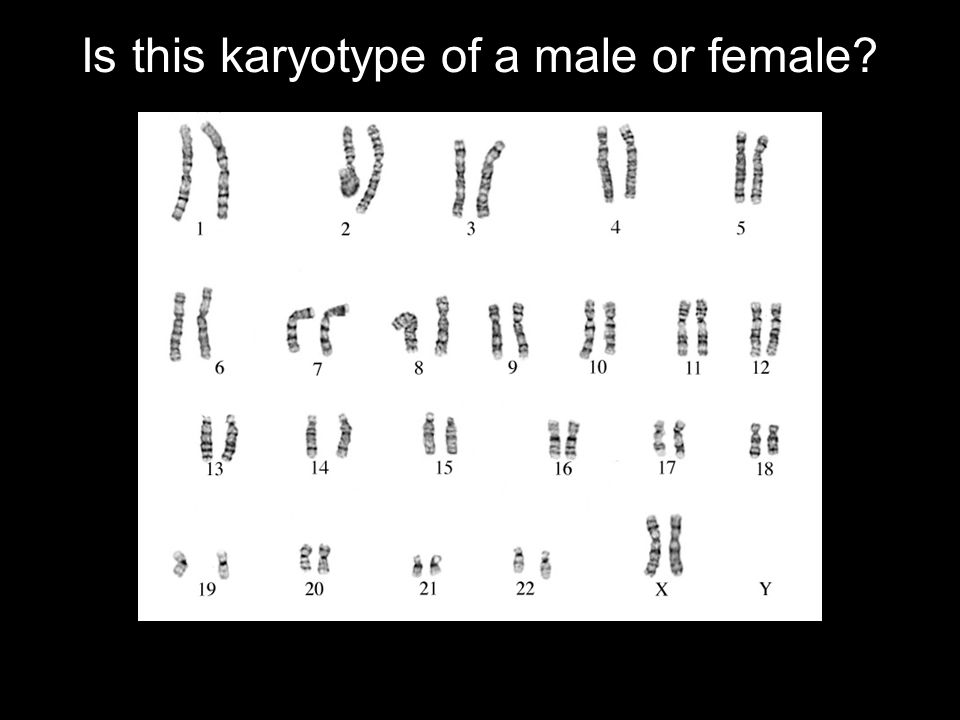 Normal Human Female Normal Human Female Why? Because she lacks a Y chromosome.