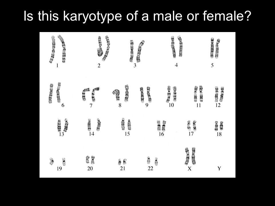 XXY Klinefelter Syndrome Tall (around six feet) Hypogonadism (small testes) Unable to produce sperm (infertile) Sparse facial and body hair Gynecomastia (male breast disorder)