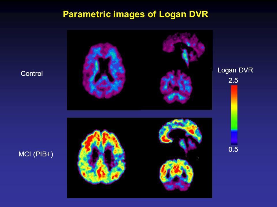 Control MCI (PIB+) Parametric images of Logan DVR Logan DVR 0.5 2.5