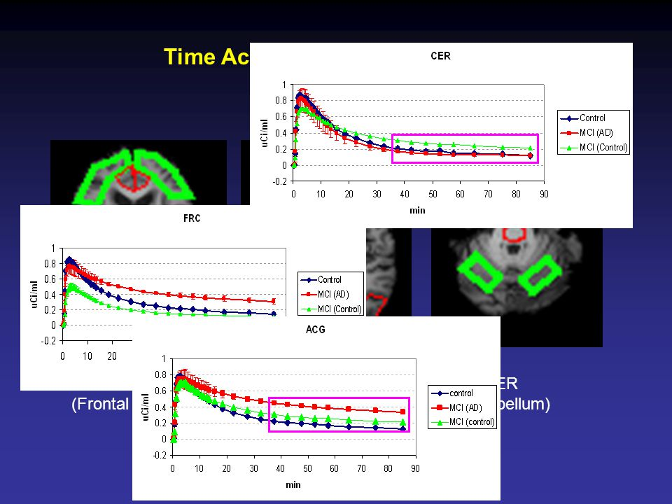 FRC (Frontal Cortex) ACG (Anterior Cingulate) CER (Cerebellum) Time Activity Curve from PET